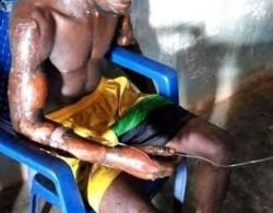 Lady sets husband ablaze in Benue state